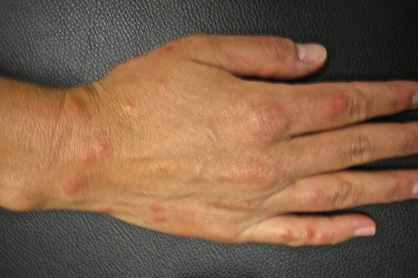swimmers itch picture